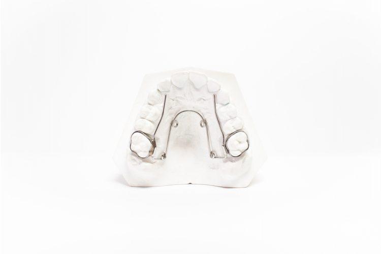 dispositivi ortodonzia fissa orthosystem torino lab quad helix
