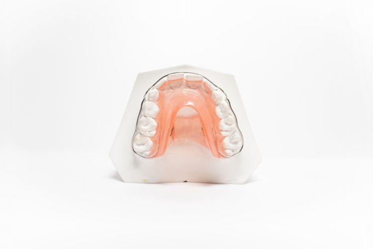 dispositivi ortodonzia funzionale orthosystem torino lab eln placca di bonnet