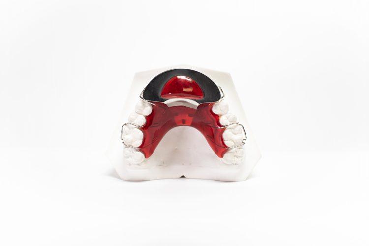 dispositivi ortodonzia mobile orthosystem torino lab placca con bite