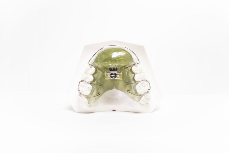 dispositivi ortodonzia mobile orthosystem torino lab placca con vite bertoni