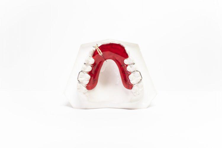 dispositivi ortodonzia mobile orthosystem torino lab placca di vander linden