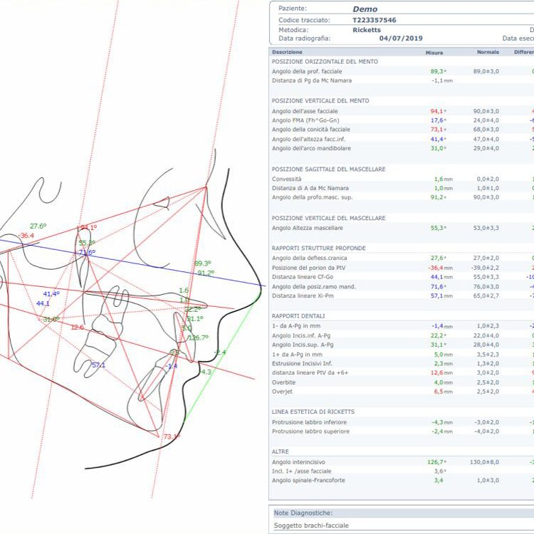 servizi orthosystem torino lab tracciati cefalometrici