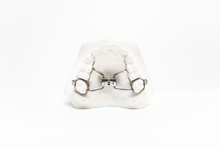 dispositivi ortodonzia fissa orthosystem torino lab disgiuntore